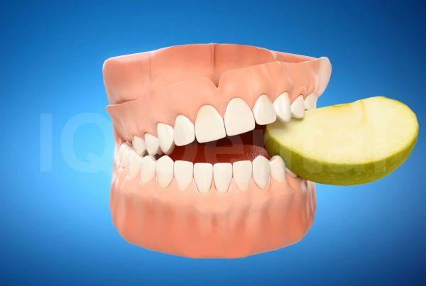 3vo Dentystyczne Animacje 3D